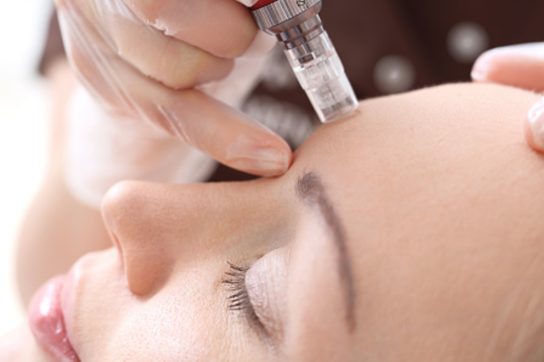Microneedling, dermarolling, hydrastamping, facial gua sha: What they are and how they differ